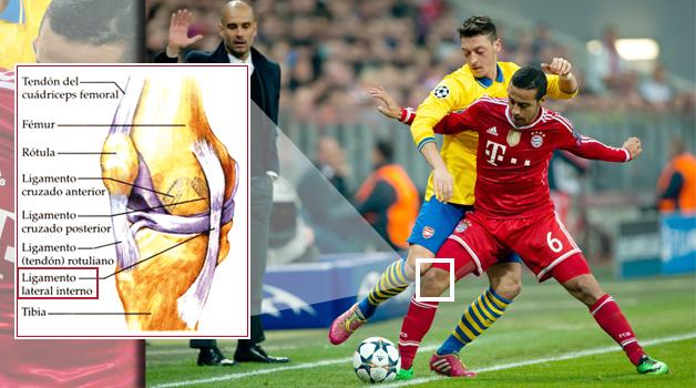 En esta infografía se muestra el sitio que viene  generando tantos infortunios para Thiago y para el Bayern. Foto: Diario Gol.